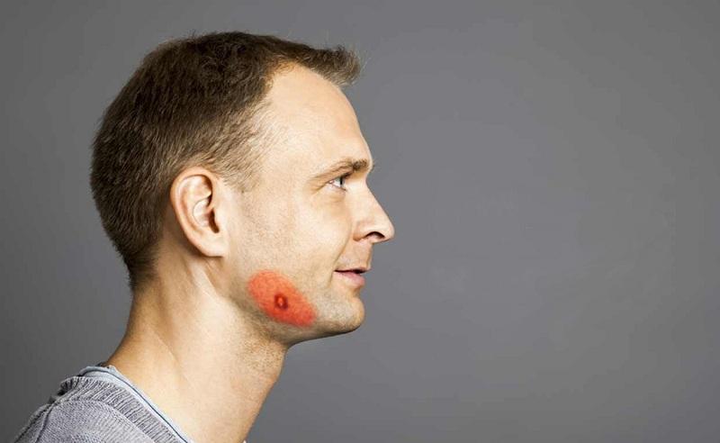 Симптомы актиномикоза у человека