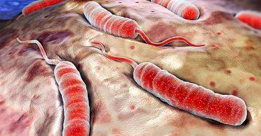 Симптомы эндемического сыпного тифа