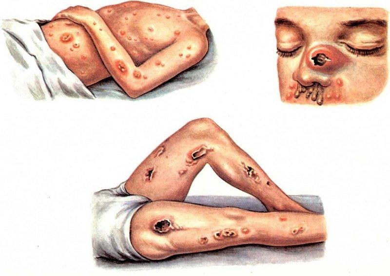 Симптомы и профилактика сап