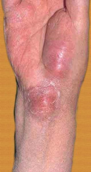 Симптомы бубонной чумы