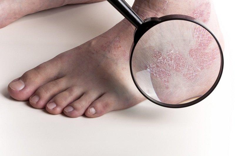 Симптомы и лечение Трихофитии у человека
