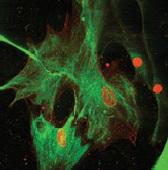 Симптом вируса иммунодефицита у кошки