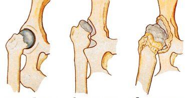 Методы лечения дисплазии