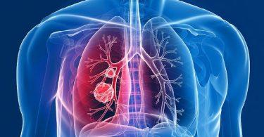Что такое Туберкулез бычьего типа