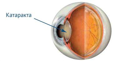 Как устранить катаракту у животных