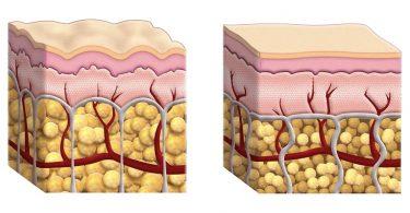Выход белка в пораженные при ожоге ткани