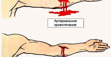 Ожог и кровопотеря