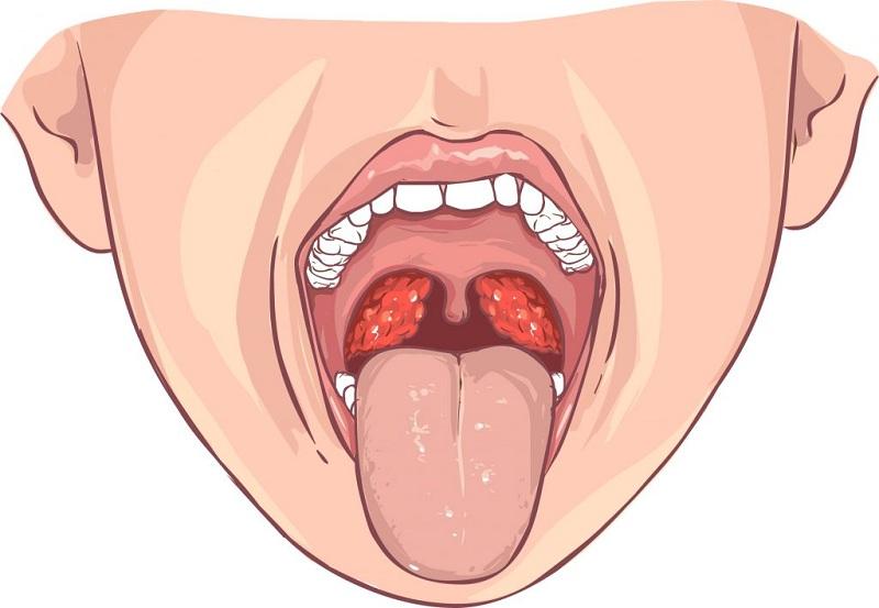 Симптомы ожоговой инфекции