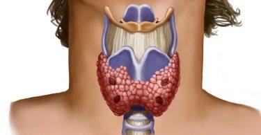 Функции щитовидной железы при ожоге