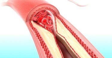 Сужение артерий при ожоге