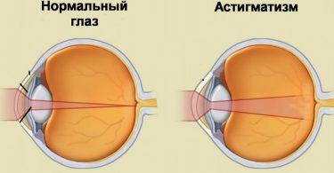Симптомы астигматизма глаз у детей