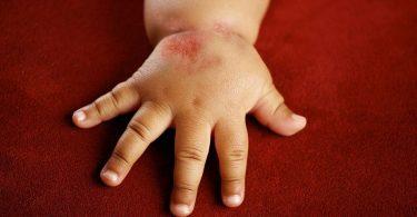 Симптомы и лечение атопического дерматита у детей