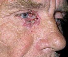 Причины базалиомы кожи