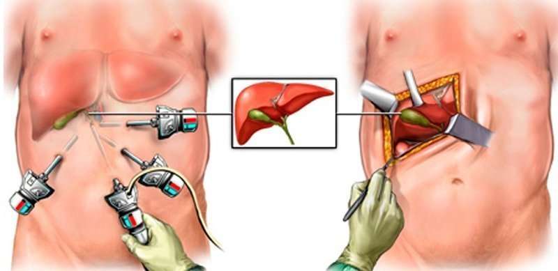 a laparoscopic cholecystectomy was indicated nursing essay Essay describing cholecystitis early laparoscopic cholecystectomy elc could be indicated if advanced laparoscopic techniques and skills are available.