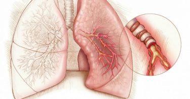 Симптомы, лечение и причины эмфиземы