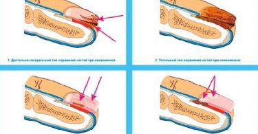 Грибок ногтей на ногах: симптомы
