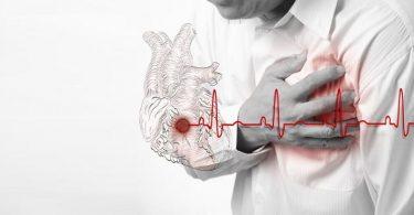 Инфаркт миокарда - причины