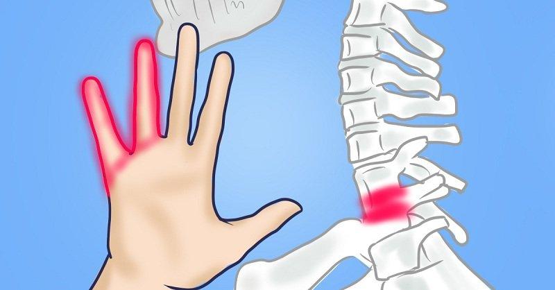 Онемение большого и указательного пальцев левой руки