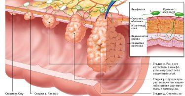 Симптомы рака кишечника у человека