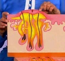 Схема образования шишки под мышкой