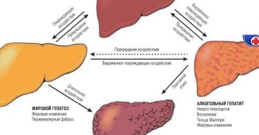 Внешние признаки заболевания печени
