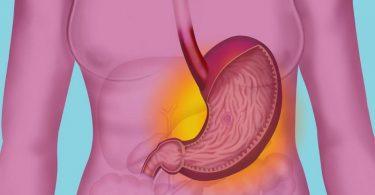 Какие бывают желудочно кишечные заболевания