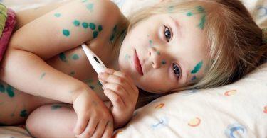 Чем лечить ветрянку у ребенка