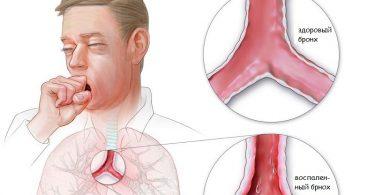 Как лечить воспаление легких