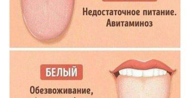 Желтый налет на языке и сухость во рту