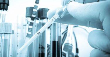 Источники заражения токсоплазмозом
