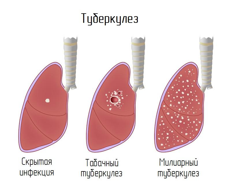 Характерные особенности туберкулеза