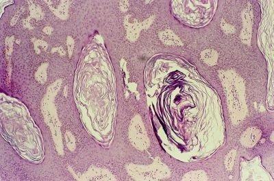 Болезнетворные микробы