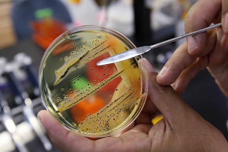 Что такое микроб Сальмонелла