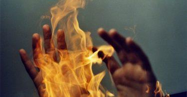 Ожоговый шок