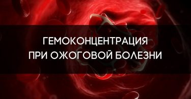 Гемоконцентрация при ожоге