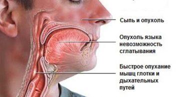 Анафилактический шок у человека