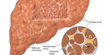 Цирроз печени: признаки