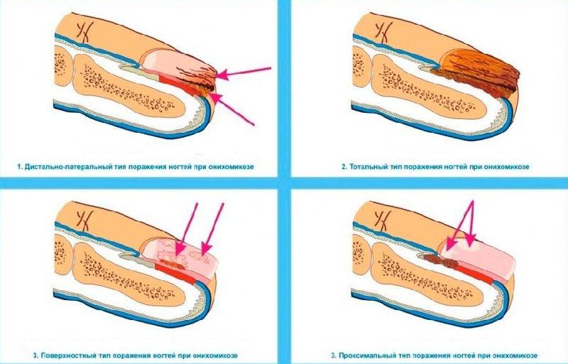 Откуда грибок ногтей на ногах