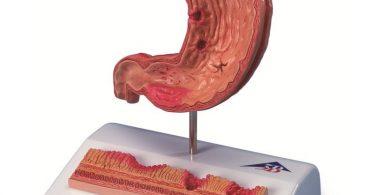 Что можно есть при язве желудка в период обострения