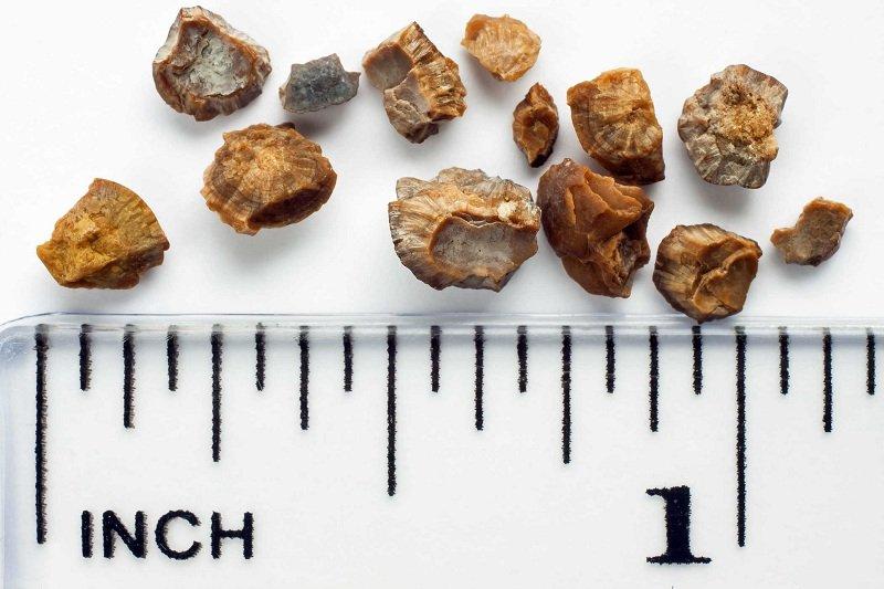 Как избавиться от камней в почках в домашних условиях