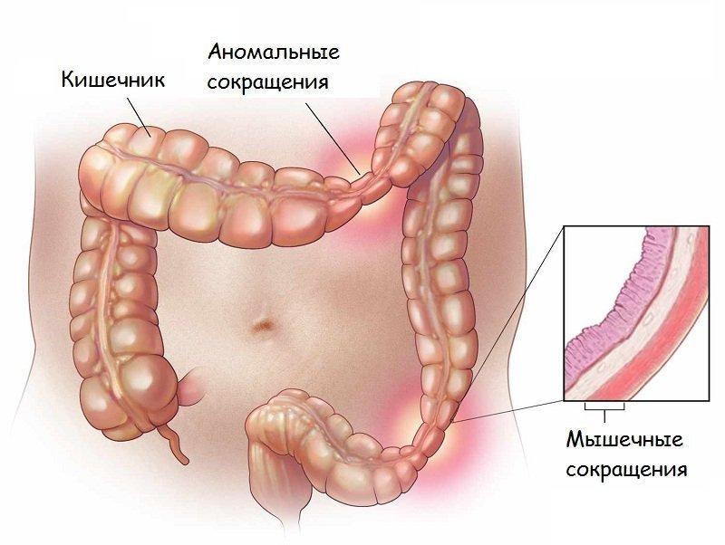 Колит кишечника: диета