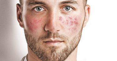 Причины купероза на лице
