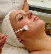 Как бороться с куперозом на лице