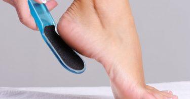 Что означают натоптыши на ногах