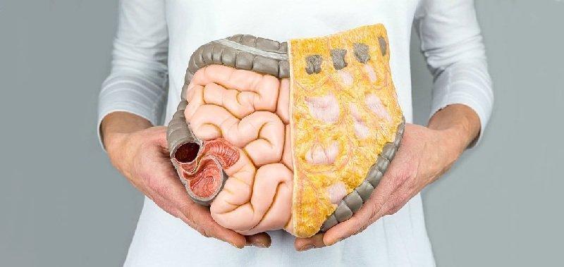 Как очистить кишечник от паразитов