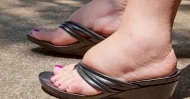 Народные методы лечения отеков ног