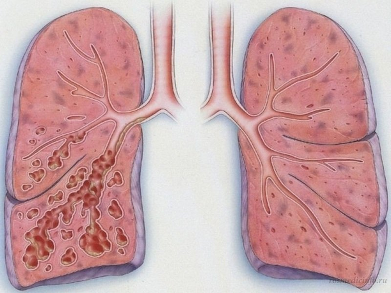 Диффузный пневмосклероз легких