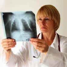 Можно ли вылечить пневмосклероз