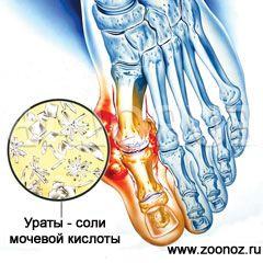 Лекарство от подагры на ногах