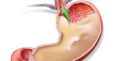 Как определить повышенная или пониженная кислотность желудка